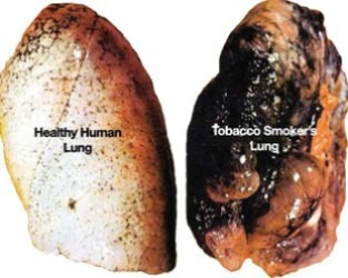 affected lungs of smoking